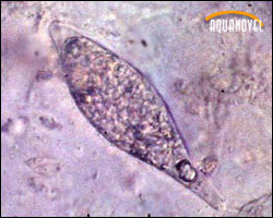 Sanguinicola observada al microscopio